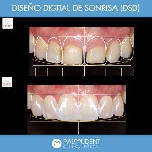 Diseño digital Clinica dental