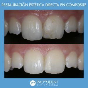 Restauración Estética en composite