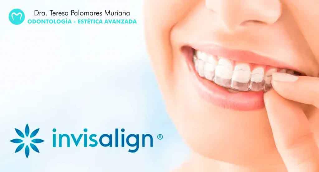 Dentista Palmudent Invisalign
